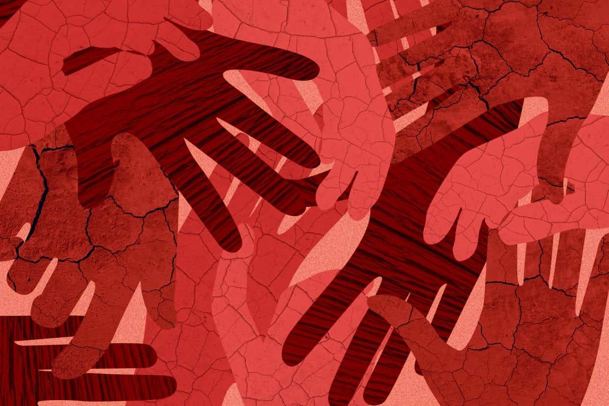 Red cracked hands